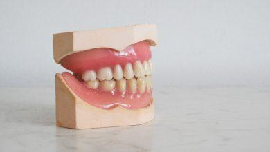 Photo of Dişeti İltihabı – Dişeti Hastalığı Nedir?